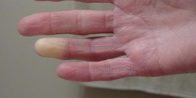 Sclerosi Sistemica, farmaci vasodilatatori e diagnosi precoce contro la malattia